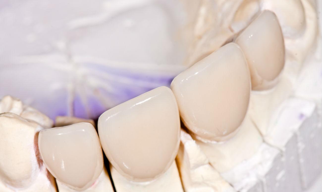 виниры на зубы виды