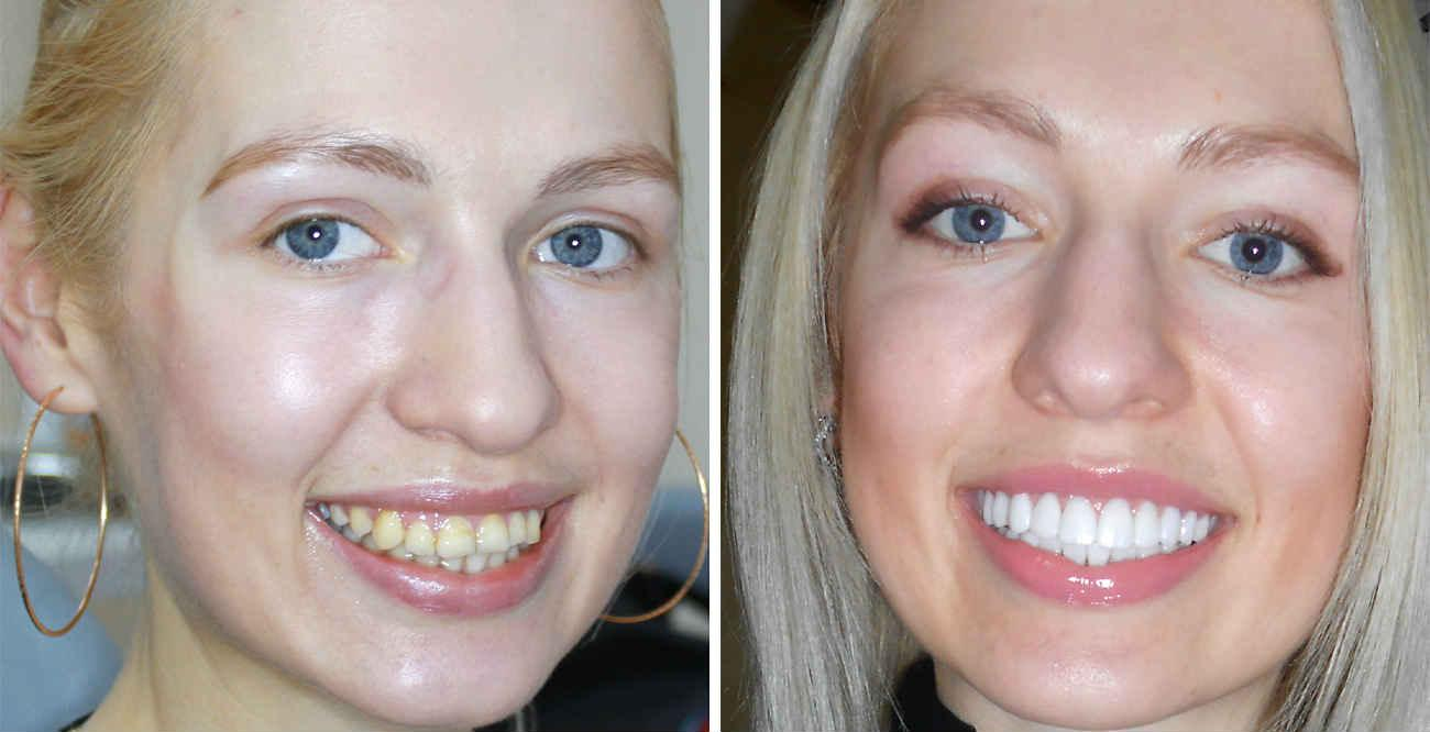 виниры на зубы можно ставить самим