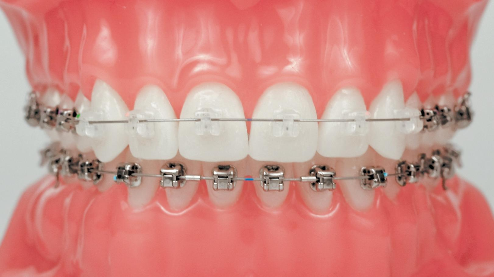 поставить виниры на зубы цена