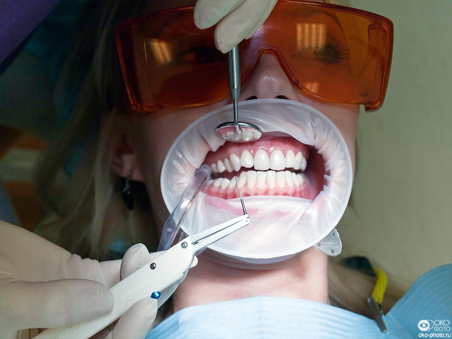 гигиеническое отбеливание зубов