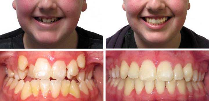 Отбелить зубы смоленск отзывы